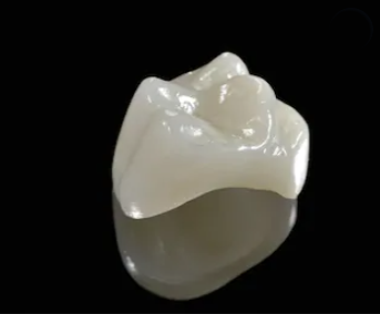Dente-de-porcelana-metal-free