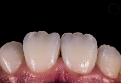 Forma-do-dente-de-porcelana